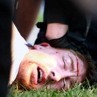 20100626 bleeding protestor detained by toronto riot police.jpg